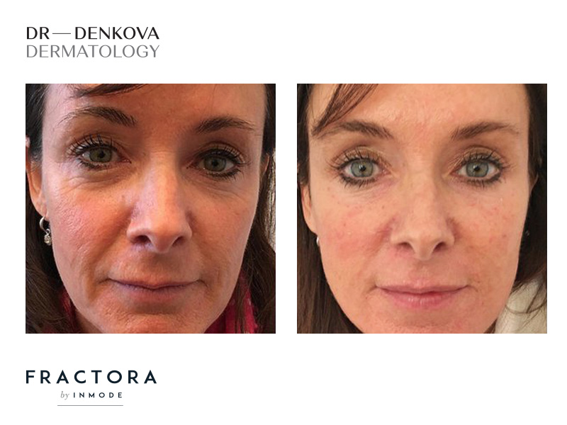 Fractora подновява кожата на лицето