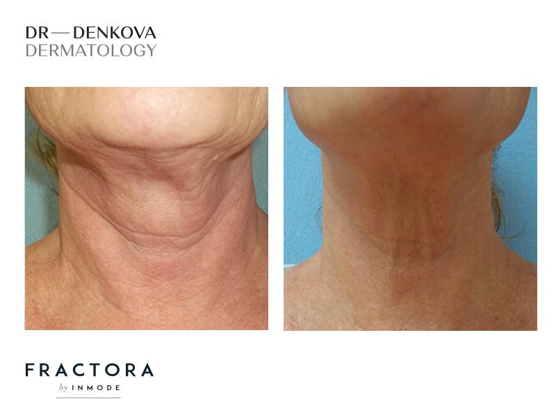 Fractora подмладява кожата на шията