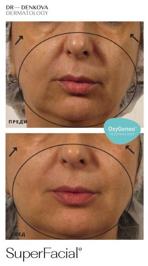 здрава имлада кожа с SuperFacial