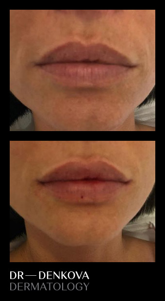 оформяне на устни