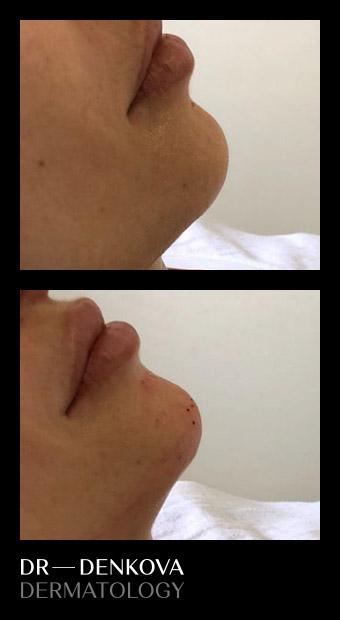 увеличаване на устни