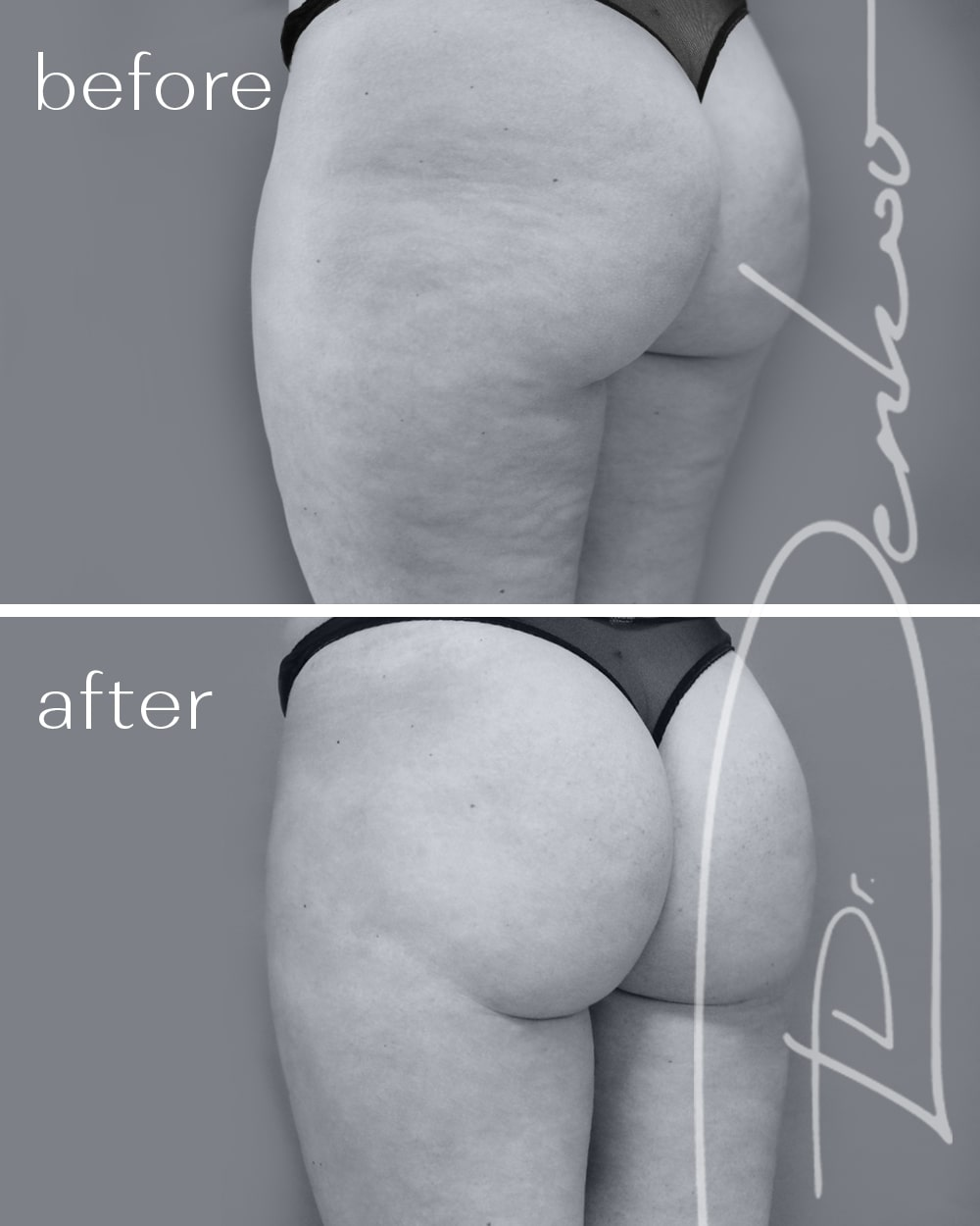 before after bodytite