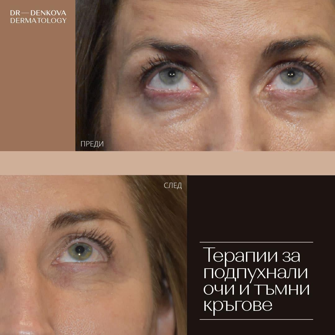 dr-denkova-neoperativna-blefaroplastika