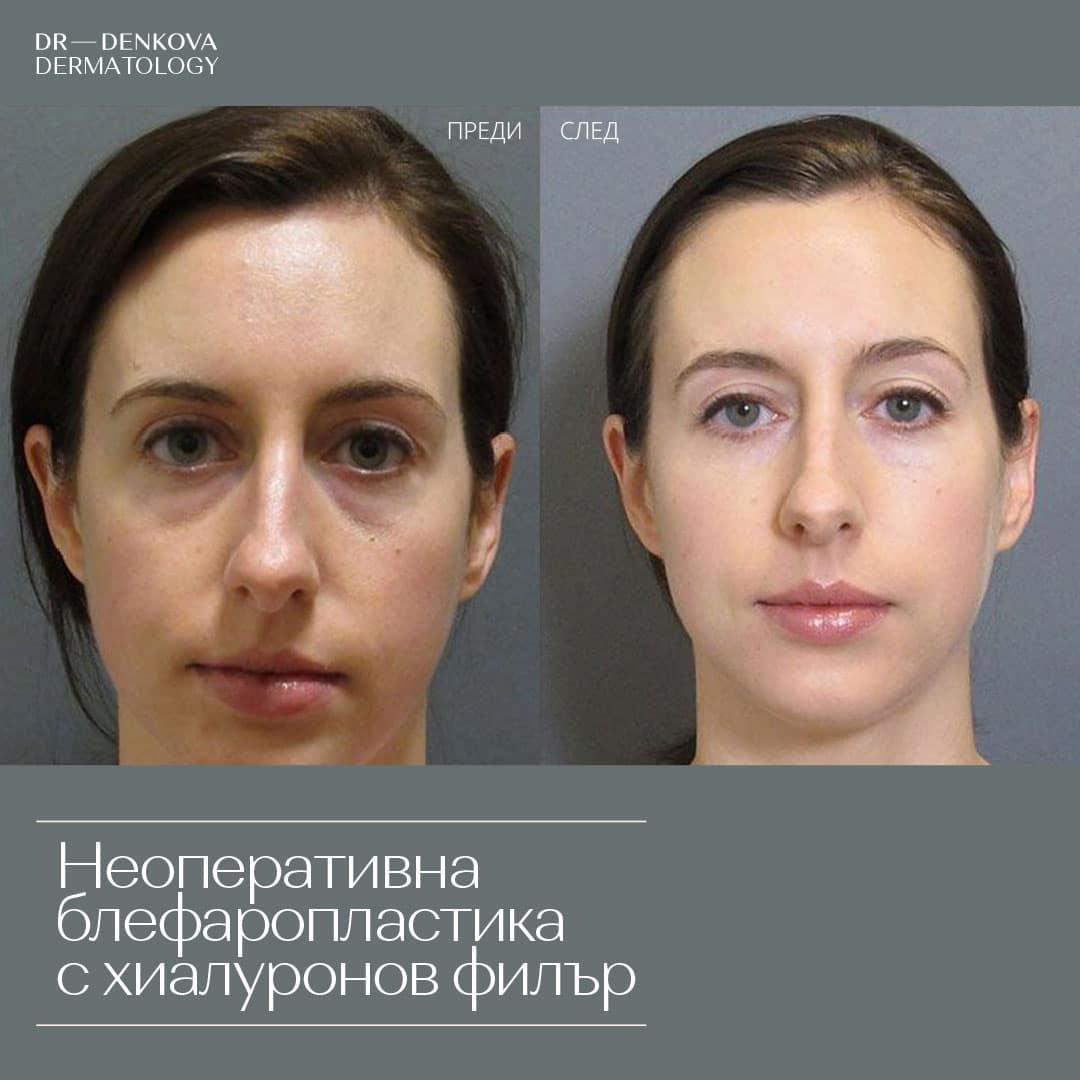 dr-denkova-neoperativna-blefaroplastika3