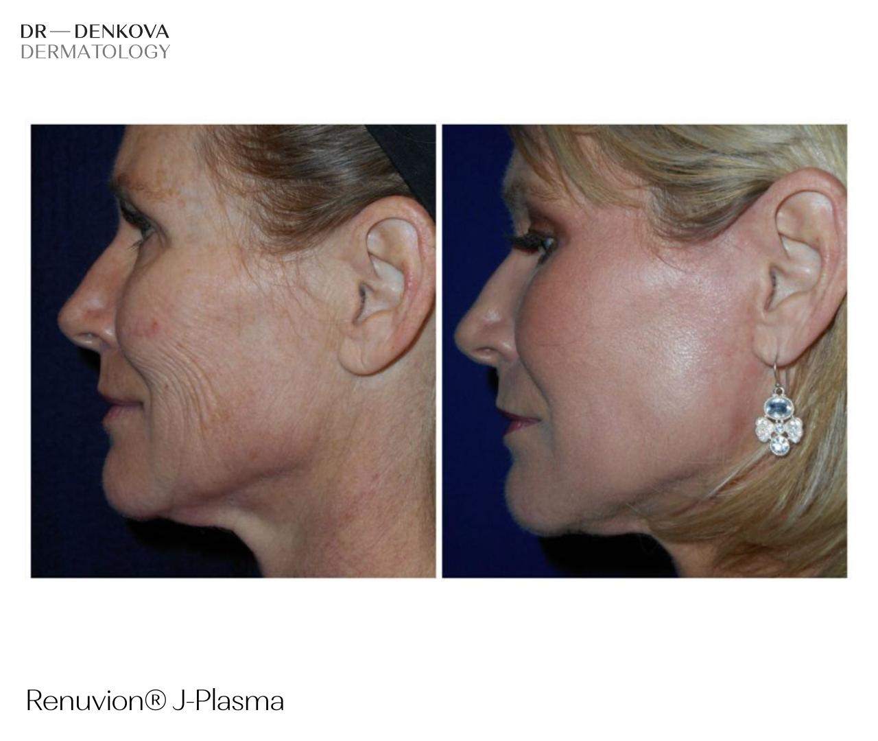 Renuvion J-Plasma - преди и след - DR—DENKOVA DERMATOLOGY