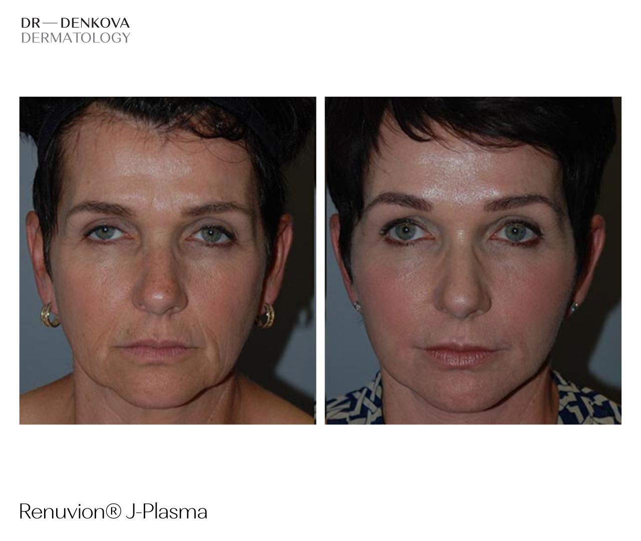 Renuvion J-Plasma - DR—DENKOVA DERMATOLOGY