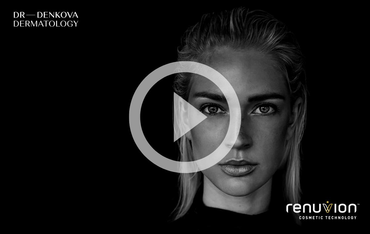 Renuvion J-Plasma - Видео постер - DR—DENKOVA DERMATOLOGY