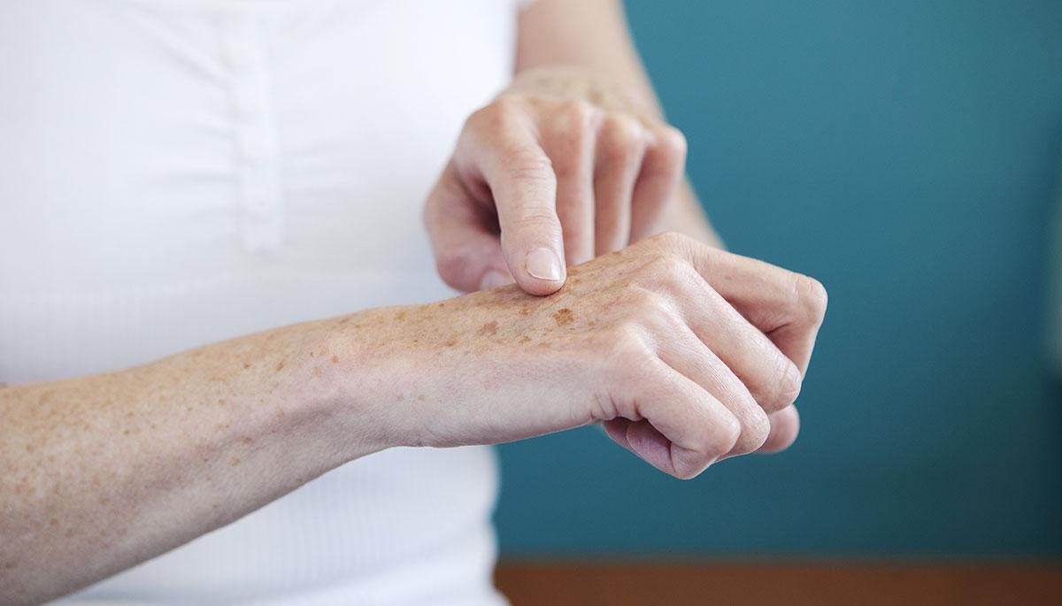 Подмладяване на ръцете при д-р Денкова