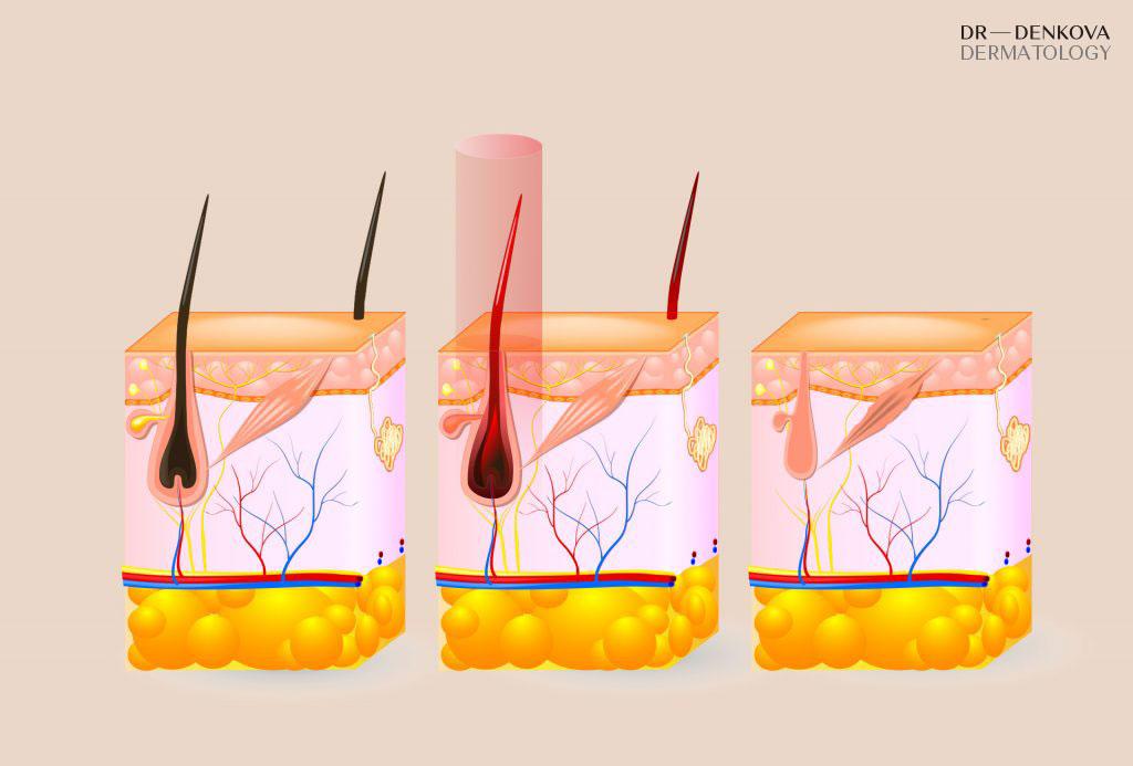 Космен фоликул - Лазерна епилация