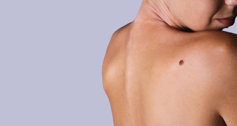 Дерматохирургия: Премахване на бенки